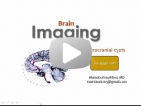 Imaging of Intra-Cranial Cysts Dr Mamdouh Mahfouz