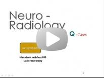 Brain Film reading - Dr Mamdouh Mahfouz (in Arabic)