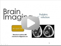 Imaging of pediatric Intracranial infections - Dr Mamdouh Mahfouz