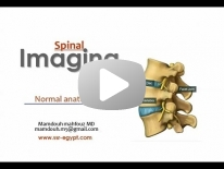 Normal anatomy of Spine imaging - for non arab