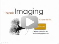 Imaging of Pulmonary vascular lesions - DRE 6 - Dr Mamdouh Mahfouz