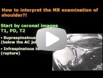 How interpret Shoulder MRI ? - Dr Mamdouh Mahfouz