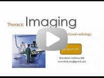 Chest Interventional radiology - DRE 8 - Dr Mamdouh Mahfouz