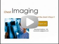 Chest X rays - BRC 3 - (Nov 2013) - Dr Mamdouh Mahfouz (In Arabic)
