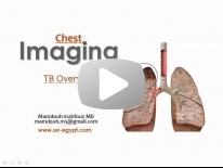 Imaging of pulmonary TB - DRE 7 - Dr Mamdouh Mahfouz