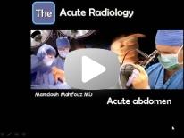 Acute abdomen imaging Dr Mamdouh Mahfouz
