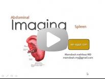 Splenic Imaging -new Dr Mamdouh Mahfouz