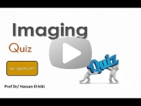 Film reading Urogenital imaging Dr Hassan El-Kiki part 1