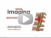 Imaging of Spinal infection Dr Mamdouh Mahfouz