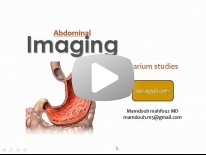 Imaging of the stomach - DRE 4- Dr Mamdouh Mahfouz
