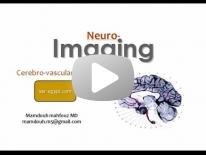 Cerebro-vascular diseases Dr Mamdouh Mahfouz